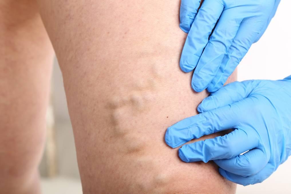 varicoză ulcer după operație